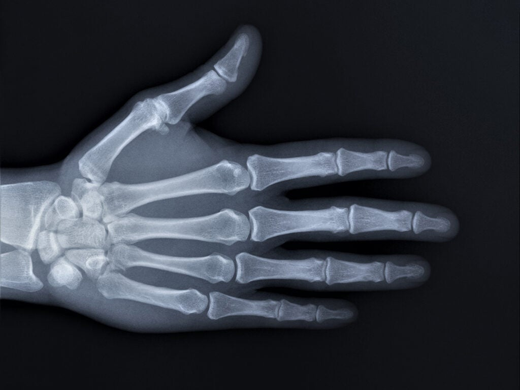 x-ray of metacarpals