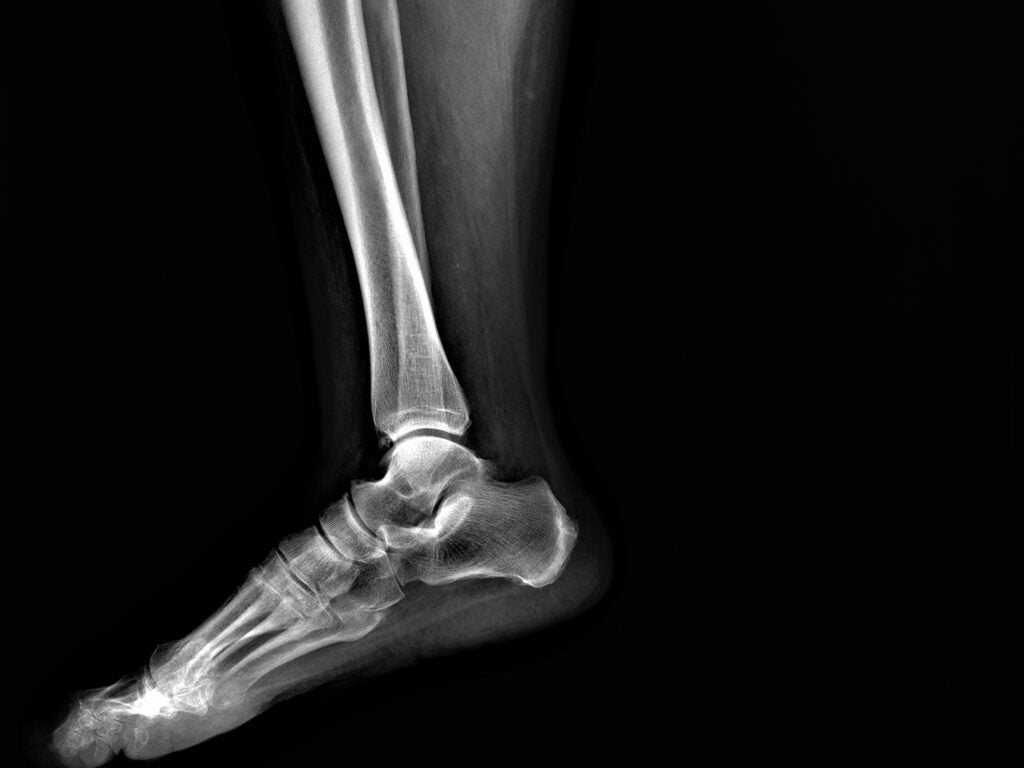 broken fibula x-ray