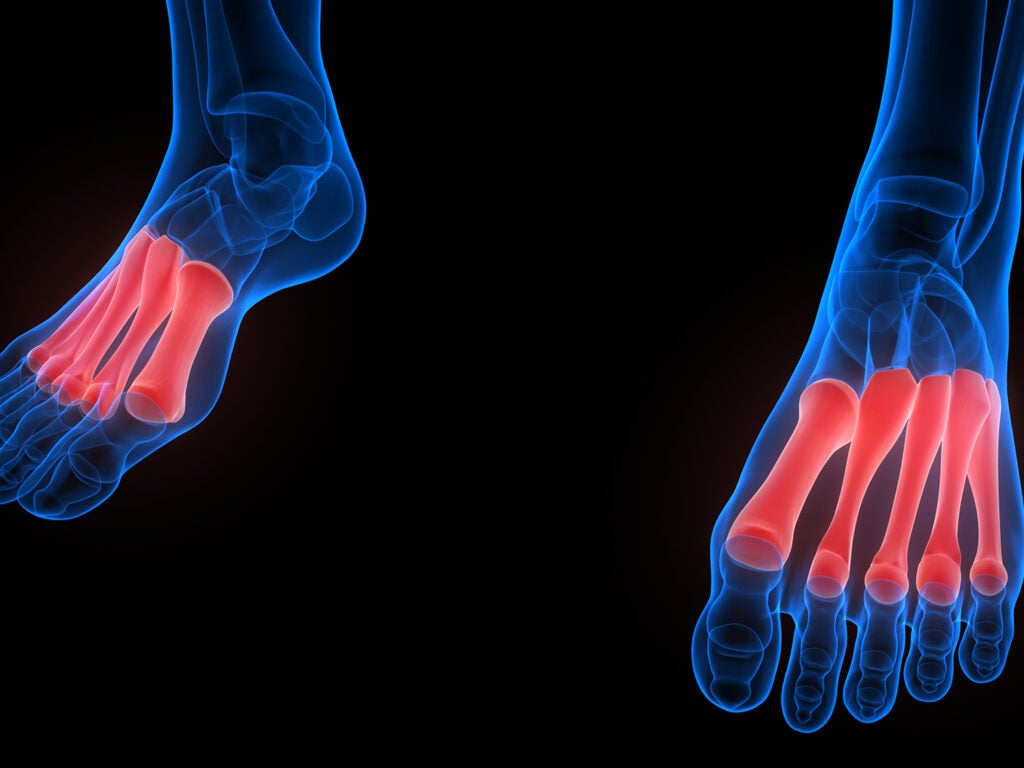 red highlighted metatarsals