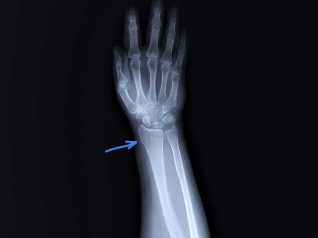 broken radius x-ray